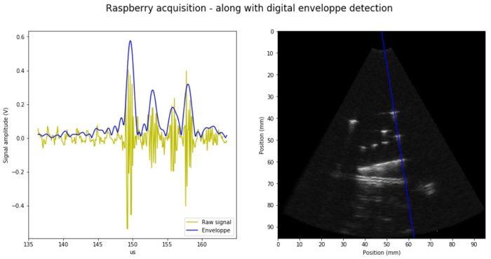 envelope analysis for ultrasound imaging