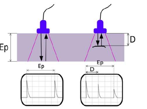 Ultrasound imaging - Murgen project